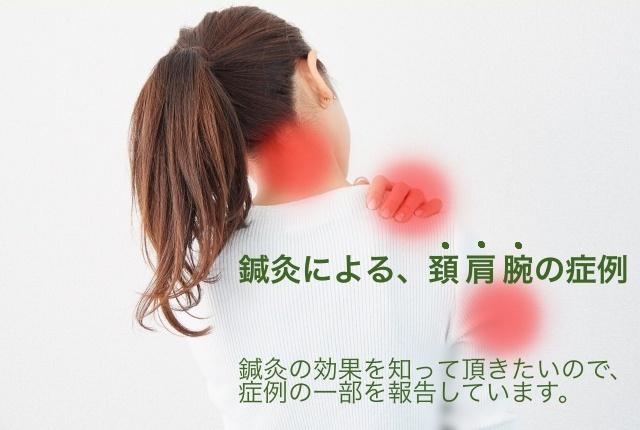 頚、肩、腕の痛みで悩んでいる人