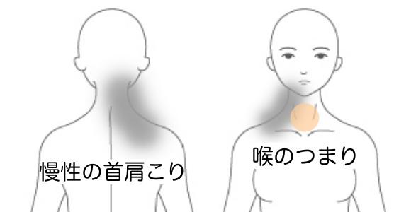 症例10の症状説明イラスト