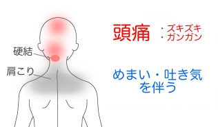 症例1の症状説明イラスト