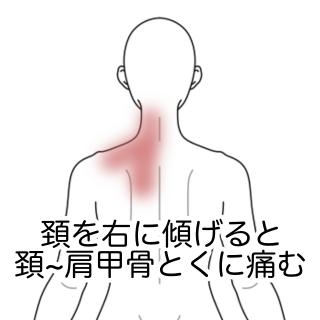 左肩 首 腕 痛み